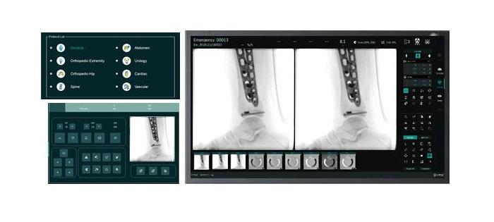 DFOC - Digital Fluoroscopy Operating Console